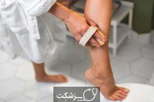 شایع ترین علت خارش ساق پا چیست؟ | پزشکت