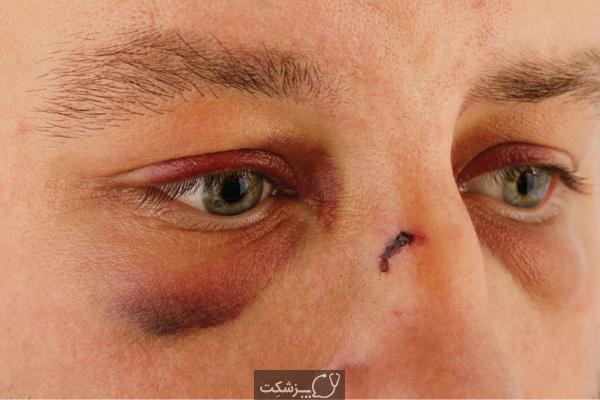 شکستگی بینی و علائم آن چیست؟ | پزشکت