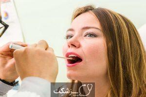 شایع ترین علل خونریزی زبان چیست؟   پزشکت