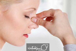شایع ترین علت آبریزش بینی چیست؟ | پزشکت