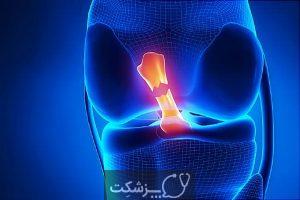 شایع ترین علل درد ناگهانی زانو | پزشکت