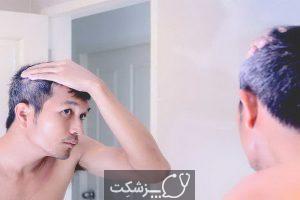 شایع ترین علل تکه های سفید مو کدامند؟   پزشکت