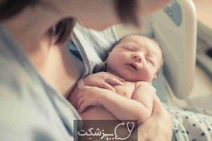 دیسپلازی ریویدر نوزادان چیست؟   پزشکت