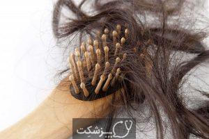 ریزش مو بعد از زایمان و راه های مقابله با آن | پزشکت