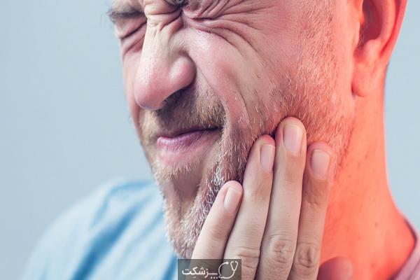 شایع ترین علل سندرم مفصل گیجگاهی فکی (TMJ) | پزشکت