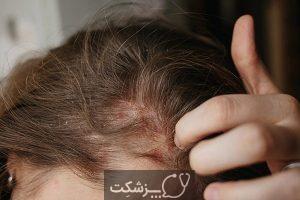 پسوریازیس پوست سر چیست؟   پزشکت