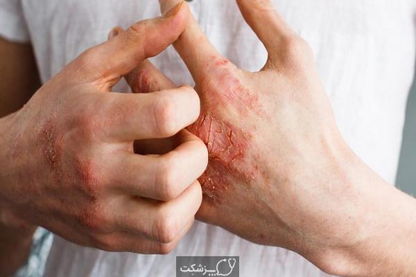 درمان خانگی خشکی دست چیست؟   پزشکت