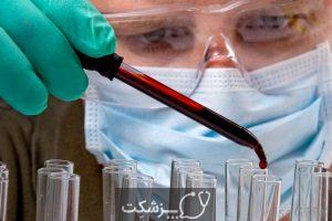 هماتولوژیست چیست؟   پزشکت