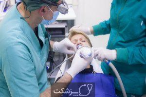 انواع روش های جراحی دندان کدامند؟ | پزشکت