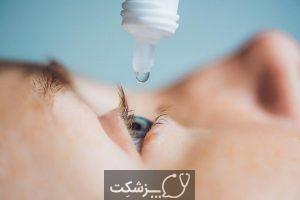 درد چشم هنگام پلک زدن | پزشکت