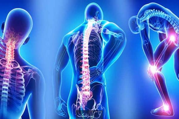 فیبرومیالژی یا فیبرومیالژیا (Fibromyalgia) چیست؟   پزشکت