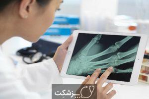 شکستگی استخوان دست از علائم تا درمان | پزشکت