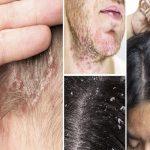 پسوریازیس پوست سر چیست؟