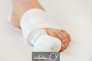 شکستگی انگشت پا چیست و چگونه درمان می شود؟   پزشکت