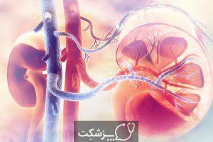 جراحی برداشتن کلیه یا نفرکتومی چیست؟ | پزشکت