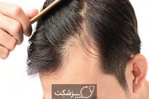 نازک شدن مو، علل و نکات پیشگیری   پزشکت