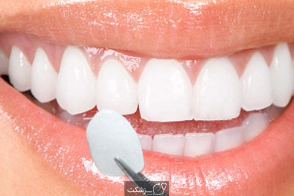 روکش دندان چیست و انواع آن کدامند؟   پزشکت
