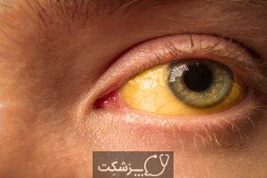 زرد شدن زبان نشان دهنده چیست؟ | پزشکت
