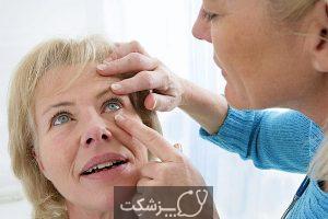 لرزش پلک و انواع بیماری های مربوط به آن | پزشکت