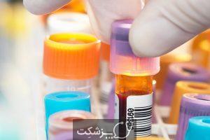 سطح بالا و پایین اسید اوریک نشانه چیست؟ | پزشکت